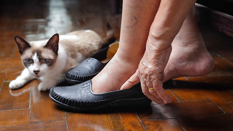 senior woman putting on shoes on swollen feet
